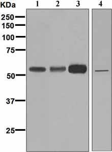 Western blot - Anti-FADS1 antibody [EPR6898] (ab126706)