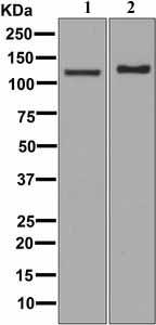 Western blot - Anti-PCB antibody [EPR7366] (ab126707)