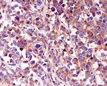 Immunohistochemistry (Formalin/PFA-fixed paraffin-embedded sections) - Anti-CARS antibody [EPR7121] (ab126714)