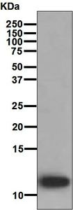 Western blot - Anti-LEC antibody [EPR4451(2)] (ab126717)