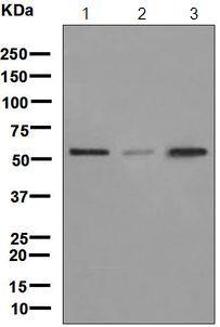 Western blot - Anti-LMAN1 antibody [EPR6980] (ab126720)