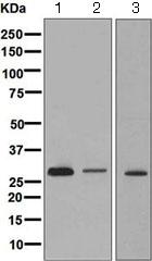 Western blot - Anti-CLIC2 antibody [EPR6495] (ab126727)