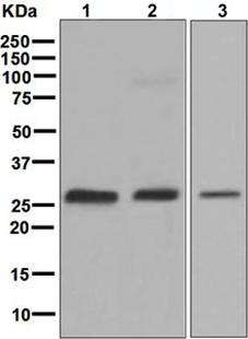 Western blot - Anti-GAMT antibody [EPR6925] (ab126736)