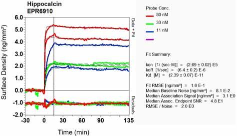 Other-Anti-Hippocalcin antibody [EPR6910](ab126740)