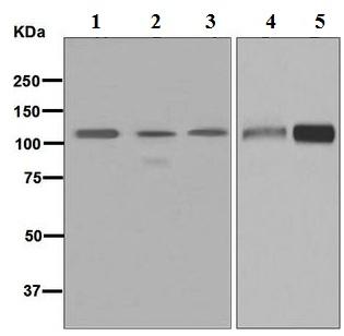 Western blot - Anti-GPCR LGR6 antibody [EPR6874] (ab126747)