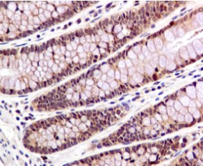 Immunohistochemistry (Formalin/PFA-fixed paraffin-embedded sections) - Anti-Smad1 antibody [EPR5522] (ab126761)
