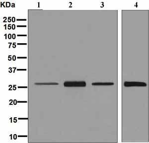 Western blot - Anti-HLA-DRB4 antibody [EPR7183] (ab126767)