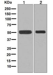 Western blot - Anti-Fascin antibody [EP5902] (ab126772)