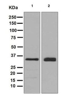 Western blot - Anti-TRAP alpha antibody [EPR5604] (ab126775)