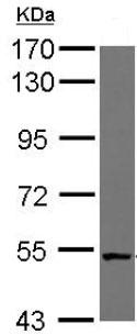 Western blot - Anti-NUDCD1 antibody (ab126902)