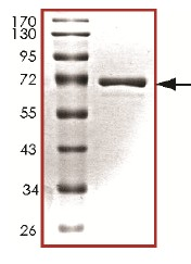 SDS-PAGE - ERK1 protein (Tagged) (ab126906)