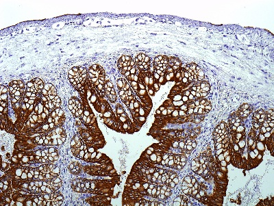 Immunohistochemistry (Formalin/PFA-fixed paraffin-embedded sections) - Mouse on Mouse Polymer IHC Kit (ab127055)