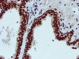 Immunohistochemistry (Formalin/PFA-fixed paraffin-embedded sections) - Anti-PADI antibody [4H5] (ab128086)