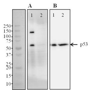 Western blot - p53 Total + Phospho Ser46 Human Elisa Kit (ab128570)