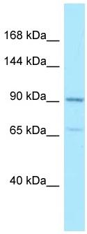 Western blot - Anti-AMPD2 antibody (ab128678)