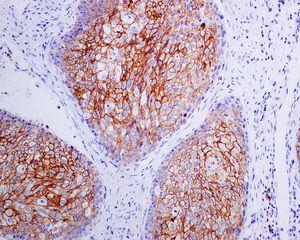 Immunohistochemistry (Formalin/PFA-fixed paraffin-embedded sections) - Anti-Syndecan antibody [EPR6454] (ab128936)