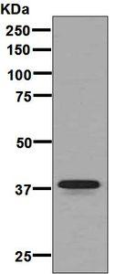 Western blot - Anti-Glycophorin A antibody [EPR8200] (ab129024)