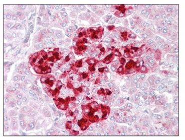 Immunohistochemistry (Formalin/PFA-fixed paraffin-embedded sections) - Anti-IGFBP7 antibody (ab129302)