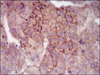 Immunohistochemistry (Formalin/PFA-fixed paraffin-embedded sections) - Anti-MELK antibody [2G2] (ab129373)