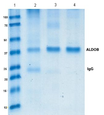 Immunoprecipitation - Anti-ALDOB antibody [5E2BD2] (ab129728)