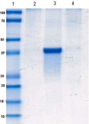 Immunoprecipitation - Anti-ALDOB antibody [5E2BD2] (ab129728)