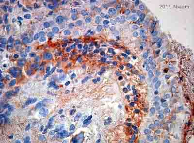 Immunohistochemistry (Formalin/PFA-fixed paraffin-embedded sections) - Anti-Haptoglobin antibody [HG-36] (ab13429)