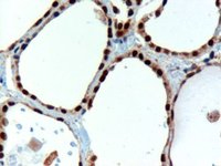 Immunohistochemistry (Formalin/PFA-fixed paraffin-embedded sections) - PAX8 antibody (ab13611)