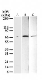 Western blot - p73 delta N antibody [38C674] - ChIP Grade (ab13649)