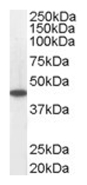 Western blot - ACADM antibody (ab13677)