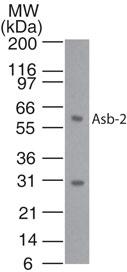 Western blot - ASB2 antibody (ab13710)