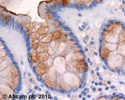 Immunohistochemistry (Formalin/PFA-fixed paraffin-embedded sections)-TRIF antibody(ab13810)