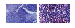 Immunohistochemistry (Formalin/PFA-fixed paraffin-embedded sections) - TLR3 antibody [40C1285] (ab13915)