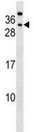Western blot - Anti-CEACAM7 antibody (ab130474)