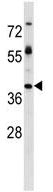 Western blot - Anti-5T4 antibody (ab130522)
