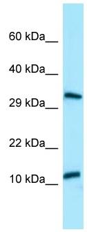 Western blot - Anti-BPY2 antibody (ab130955)