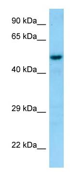 Western blot - Anti-Snx6 antibody (ab131010)