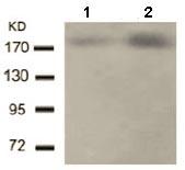 Western blot - Anti-ErbB 2 (phospho Y1221 + Y1222) antibody (ab131102)