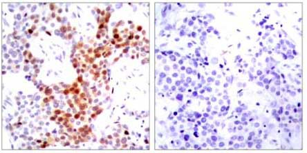 Immunohistochemistry (Formalin/PFA-fixed paraffin-embedded sections) - Anti-ATF2 (phospho T69 + T51) antibody (ab131106)