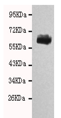 Western blot - Anti-CHRDL1 antibody [not given] (ab131189)