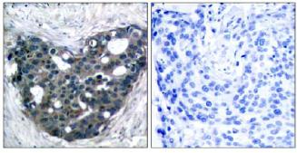 Immunohistochemistry (Formalin/PFA-fixed paraffin-embedded sections) - Anti-DOK2 antibody (ab131488)