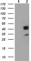 Western blot - Anti-A4GNT antibody [5B5] (ab131649)