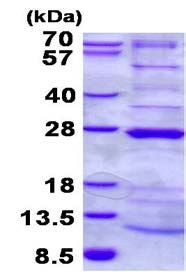 SDS-PAGE - NDUFAF4 protein (His tag) (ab134610)