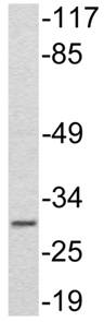 Western blot - Anti-Adiponectin antibody (ab134692)
