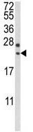Western blot - Anti-RGS4 antibody (ab135725)