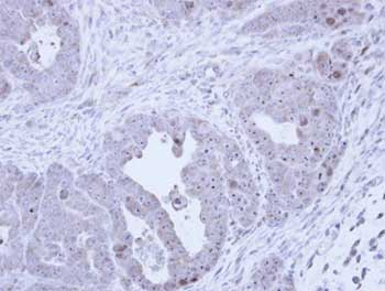 Immunohistochemistry (Formalin/PFA-fixed paraffin-embedded sections) - Anti-Fibrillarin antibody (ab137422)