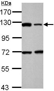 Anti Parp Antibody Ab137653 Abcam