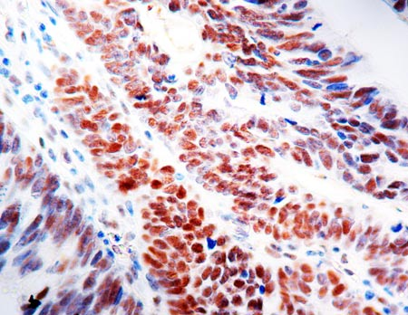 Immunohistochemistry (Formalin/PFA-fixed paraffin-embedded sections) - Anti-MLH1 antibody [G168-15] (ab14206)