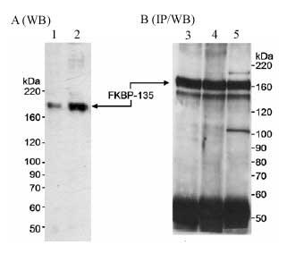 Western blot - FKBP135 antibody (ab14432)