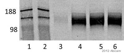 Western blot - Anti-PADPR antibody [10H] (ab14459)