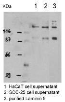 Western blot - Laminin 5 antibody (ab14509)